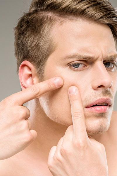 peau grasse chez l'homme acnès