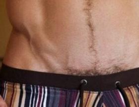 épilation du maillot homme