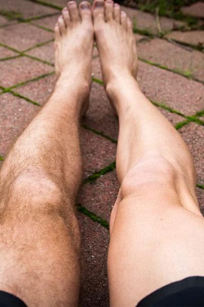 épilation jambe homme