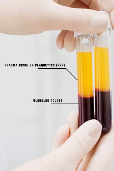 tube contenant de la prp