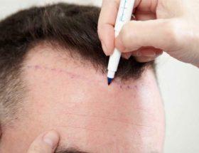 techniques de greffe de cheveux