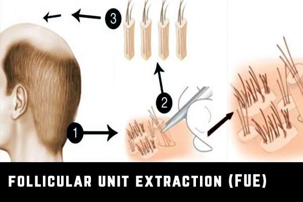 techniques greffe de cheveux fue