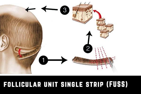 greffe de cheveux fuss