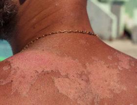 peau qui pèle homme arrêter de peler