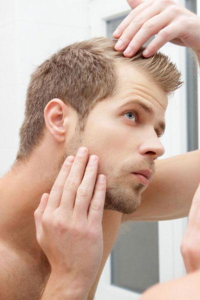 perte de cheveux homme lutter contre la calvitie
