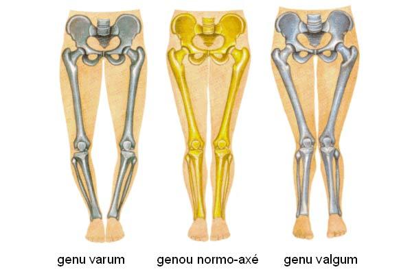 rééducation après une ostéotomie tibiale